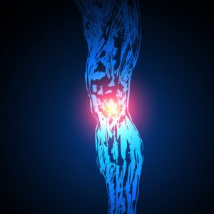 vector Painful Knee, easy all editable